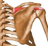 Dalinis peties sąnario viršdyglinio raumens sausgyslės nutrūkimas