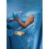 Peties sąnario artroskopija